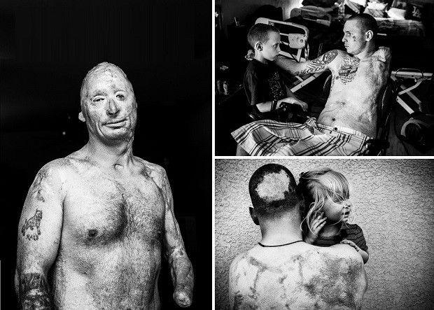 Последствия войны в фотопроекте «Неизвестный солдат» - http://russiatoday.eu/posledstviya-vojny-v-fotoproekte-171-neizvestnyj-soldat-187/ Фотограф Дэвид Джей показал нам шокирующую серию снимков «Неизвестный солдат» — это новый проект, на снимках которого изображены солдаты серьёзно ранен�