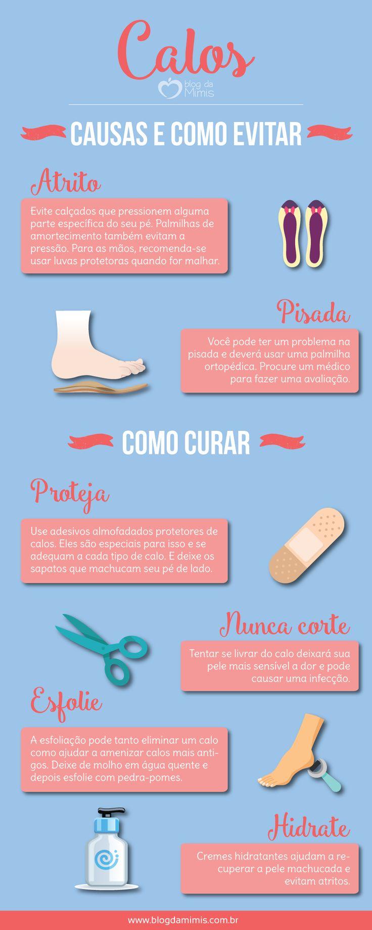 Truques caseiros para prevenir e tratar calos - Blog da Mimis #pés #mãos #atleta #caminhada #pisada #calos