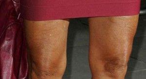 Bacaklarınızda sarkmalar arttı ve bu da sizi rahatsız etmeye başladıysa, bu nedenle dilediğiniz gibi giyinemiyor musunuz? Peki bu duruma nasıl son vereceksiniz?   http://www.hangimoda.com/sarkik-bacaklara-son.html