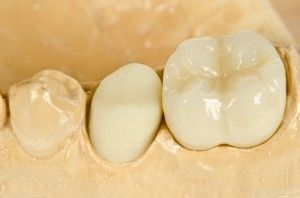 Contact Kings Family Dental Centre for wisdom tooth extraction in Kings Langley, Blacktown and Hills District. For more details call 6129674349