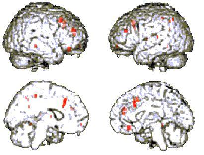 Increasing brain iq image 3