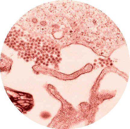 West Nile Virus. I love virions.