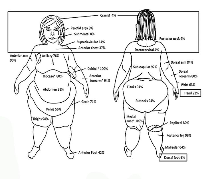 Click Lipedema Fat And Signs And Symptoms Of Illness