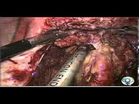 ▶ Endometriose intestinal Shaving - YouTube