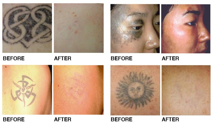 61 best tattoo removal before and after pictures images on for Laser tattoo removal manhattan