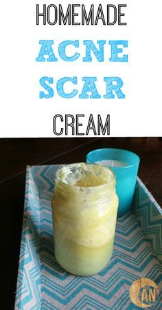 Find out how to heal your acne scars at home naturally!
