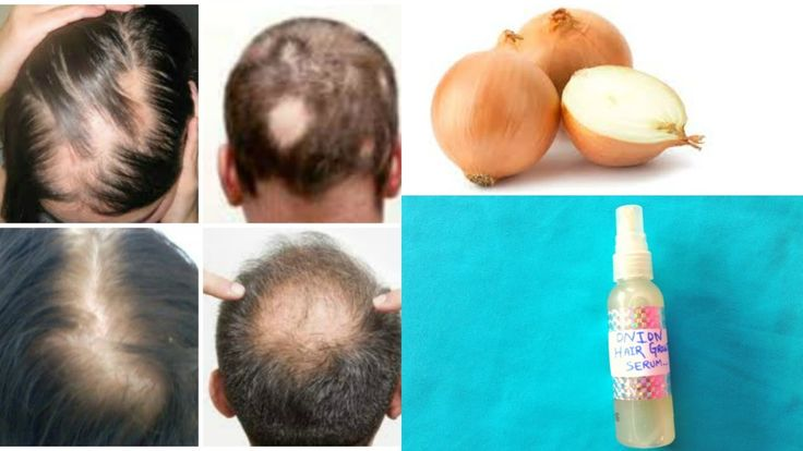 100% Hair Growth (Scientifically Proven)  || Best Hair Loss Treatment Fo...