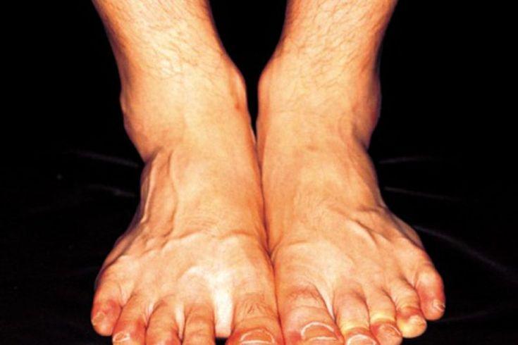 Cómo deshacerte del hormigueo, la hinchazón y la inflamación de los pies   Muy Fitness