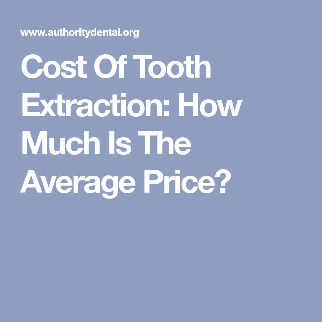 Cost Of Tooth Extraction: How Much Is The Average Price?