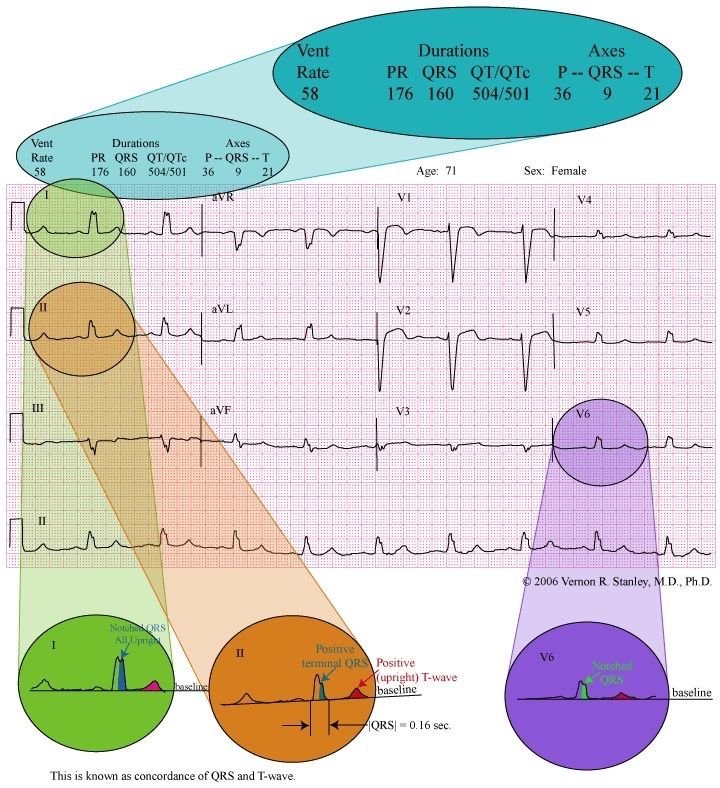 Pin by andres sanchez on ekg college nursing cardiology