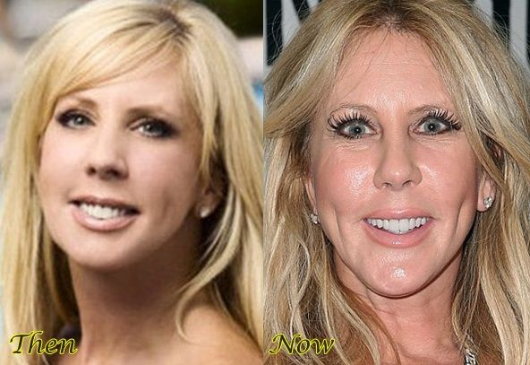 How deep does Vicki want those dimples to go? KMW Plastic - plastic surgery consultant sample resume