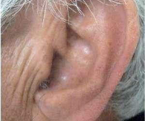 Az elzáródott artériák 4 különös jele