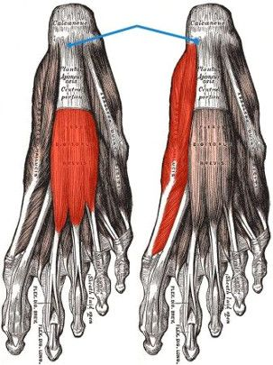 Plantar fasciitis is a painful condition that can have a serious impact on your
