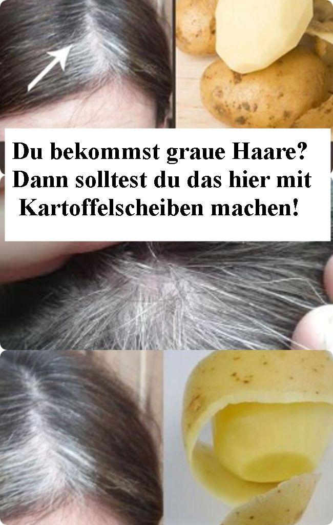 Du bekommst graue Haare? Dann solltest du das hier mit Kartoffelscheiben machen!…