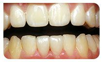 Teeth bonding – Need to repair missing, worn or decayed teeth? Consult Blackburn, Melbourne based teeth bonding dentists for white fillings, dental bonding on 03 9877 2035.  http://getfreecharcoaltoothpaste.tumblr.com