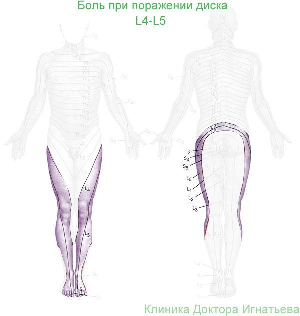 Боли при поражении сегмента l4-l5