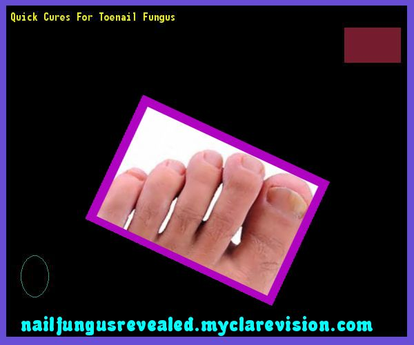 Quick cures for toenail fungus - Nail Fungus Remedy. You have nothing to lose! Visit Site Now