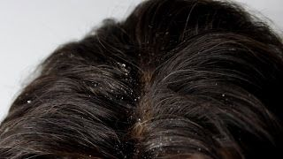 ¿Buscas Tratamientos Caseros Para La Caspa? Los Siguientes 6 Tratamiento Te Ayudaran a Eliminar La Caspa Naturalmente y En Pocas Semanas.