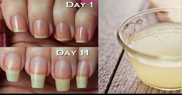 728 best remedios caseros images on pinterest home remedies tips to grow your nails longer faster httpu8274p9189endingbuzzz solutioingenieria Gallery