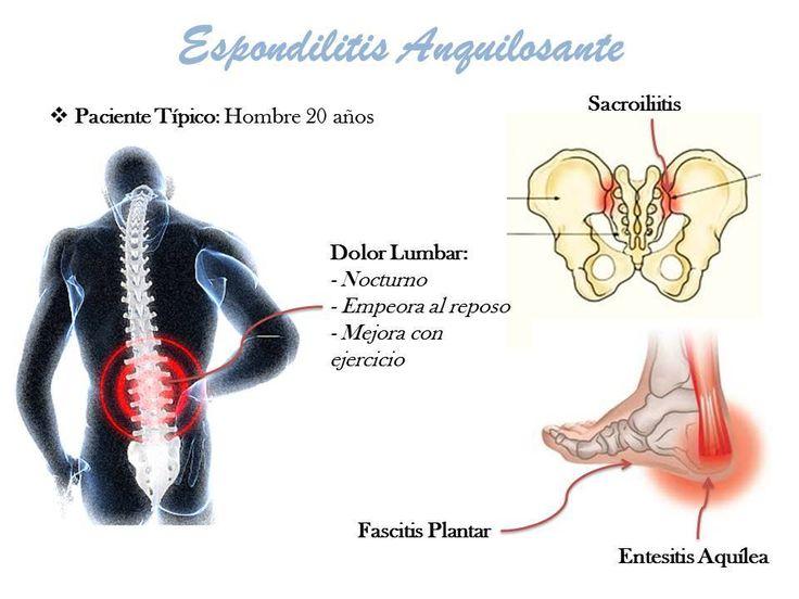 Espondilitis Anquilosante http://fibromialgiayfatigacronica.over-blog.com/2016/05/espondilitis-anquilosante.html?utm_source=_ob_share&utm_medium=_ob_twitter&utm_campaign=_ob_sharebar #EspondilitisAnquilosante #dolor #dolorcronico