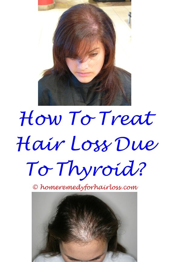 how to help hair loss from stress - gamma knife and hair loss.prp for hair loss for guys over 70 sebum production hair loss what causes hair loss in dogs 1040573033
