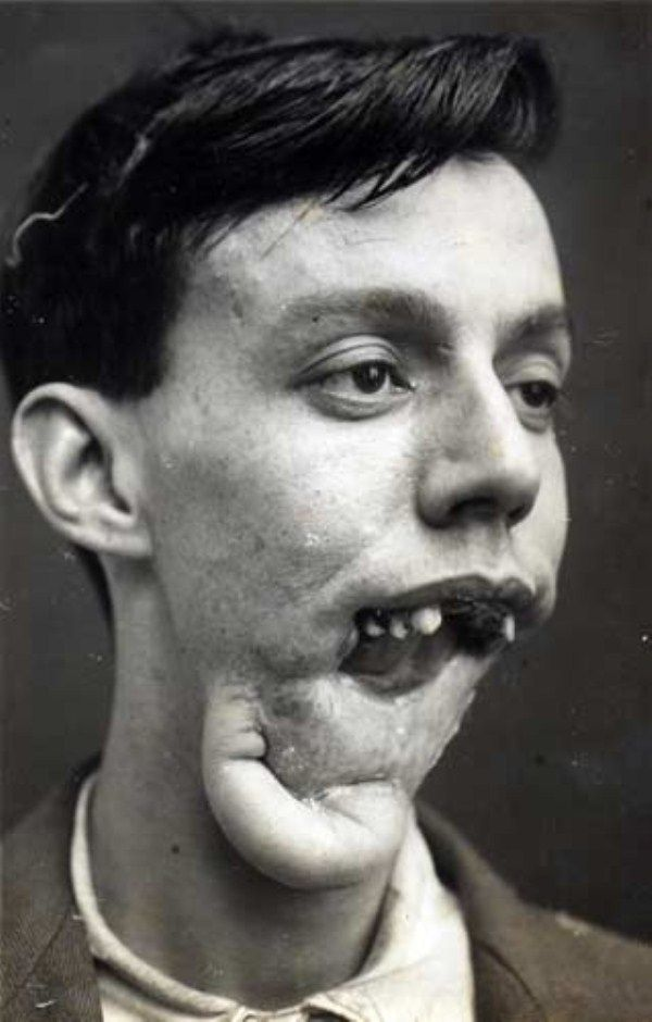 Reconstruction phases of a Willie Vicarage's jaw after a bullet hit in 1921. Considering the date, that is damned impressive.... Antibiotics had not yet been invented, meaning it was very hard to graft tissue from one part of the body to another because infection often developed.  Traditionally, the edges of facial wounds were simply stitched together, but when scar tissue contracted faces were left twisted and disfigured. Harold Gillies, known as the father of modern plastic surgery, did...