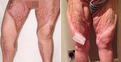 El uso de una maquinilla de afeitar mecánica a menudo es la causa de lesiones que parecen inofensivas, pero que pueden dañar significativamente la piel. Como fue el caso de esta mujer que, después de afeitarse el área púbica, casi pierde las piernas debido a una infección mortal.\r\n\r\n[ad]\r\n\r\nDana Sedgewick contrajo una infección después de haberse afeitado el área púbica con una afeitadora nueva y haberse cortado en la ingle. Unos minutos más tarde, desarrolló una erupción roja en las…