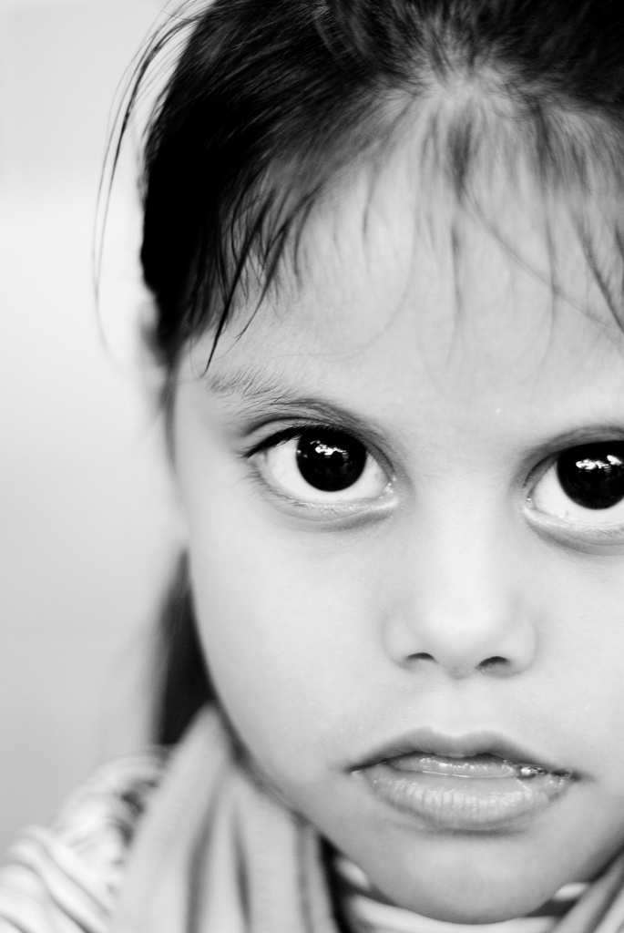The Hogar del Niño Orphanage in El Salvador is home to 140 people with disabilities, including 6-yr-old Fatima, who has cerebral atrophy.