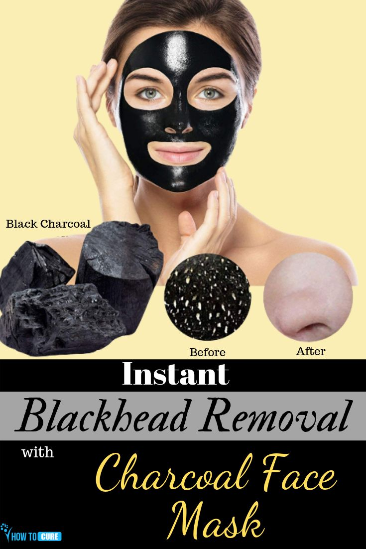 Instant Blackheads Removal with Charcoal Face Mask – HowToCure