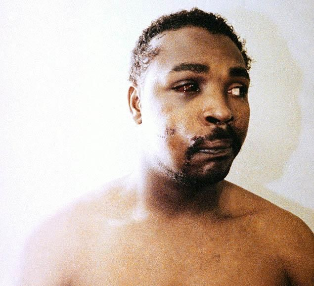 Rodney King   Rodney King, three days after his videotaped beating in Los Angeles on ...