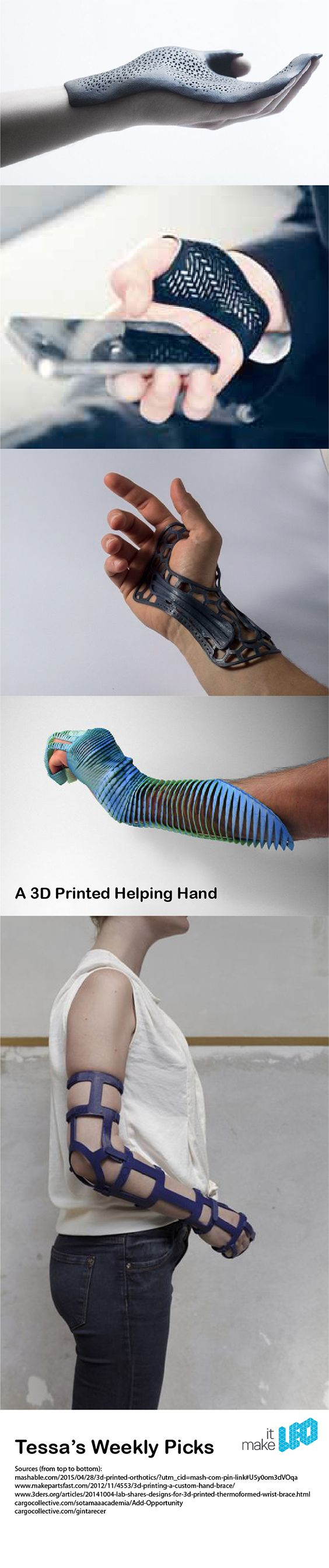 A 3D Printed Helping Hand - 5 Designs of 3D Printed Hand Braces - Tessa's Weekly…