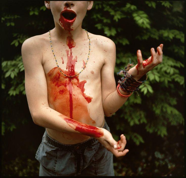 Sally Mann – Emmett's Bloody Nose