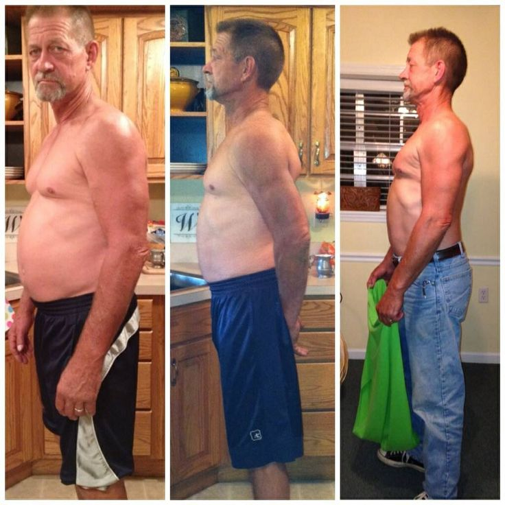 Weight loss surgery after gastric bypass