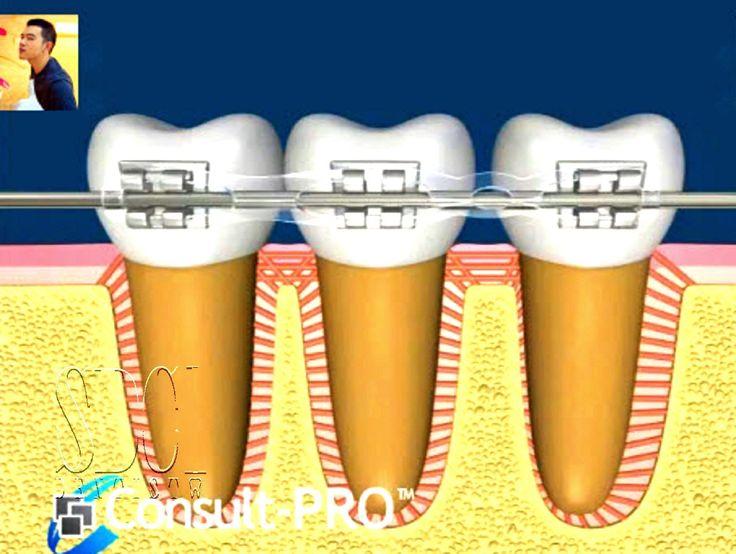 How braces teeth move?