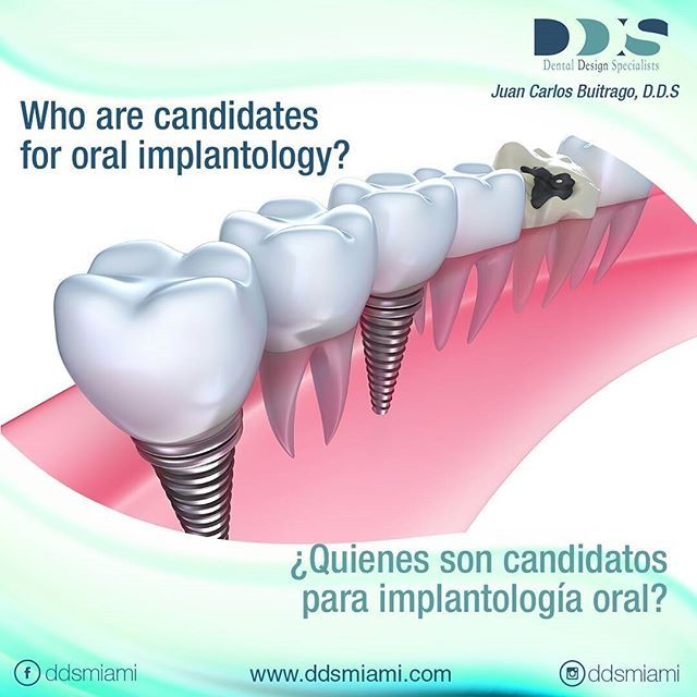"""🇺🇸 Anyone in good general and oral health can be the ideal candidate for a dental implant. Adequate bone in your jaw is needed to support the implant, and have healthy gum tissues that are free of periodontal disease. Call now and schedule your appointment. 📞(305) 270-0744 Miami, Fl. . 🇪🇸 Cualquier persona con una buena salud general y oral puede ser el candidato ideal para un implante dental. Se necesita hueso adecuado en la mandíbula para soportar el implante y tener encías sanas que…"