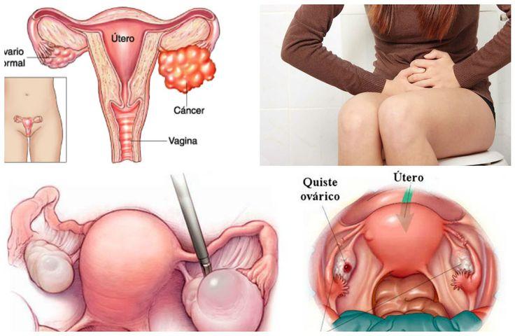 Aprende la importancia de reconocer los síntomas que pueden indicar el padecimiento de quistes en los ovarios.