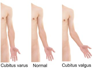 Varus deformity - Wikipedia, the free encyclopedia