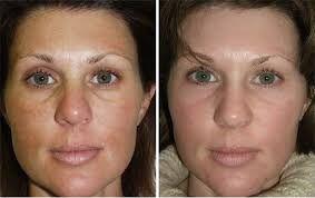 Лазерный пилинг — это современная косметологическая процедура, которая направлена на сохранение здоровья и красоты кожи лица. С её помощью добиваются быстрого и бесследного удаления мимических морщин, сосудистых звездочек, послеродовых растяжек, рубцов (последствия угревой сыпи), родинок, пигментных пятен и других дефектов кожи.