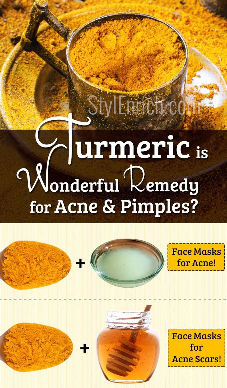 Turmeric for Acne : A Wonderful Remedy for Acne and Pimples
