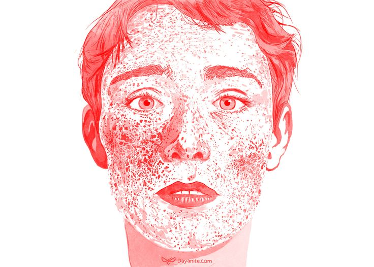 I Love Freckles. Inspired by a photograph by Tim Cavadini | Photography. His photo is called counting stars II.