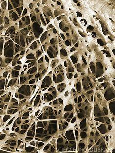 bone marrow microscope - Google Search