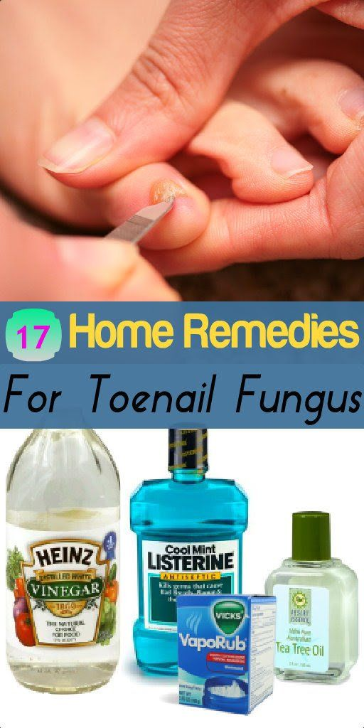 Home Remedies Store — 17 Home Remedies for Toenail Fungus