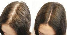 10 Hausmittel für natürlich volles Haar - Rizinusöl vorher nachher