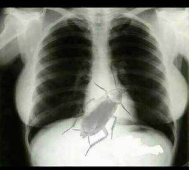 No, a Circulating X-Ray Image Does NOT Show a Live Cockroach in a Human Chest #prank