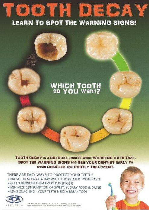 Learn to spot the warning signs of tooth decay - A poster from the ADA's Victorian branch.