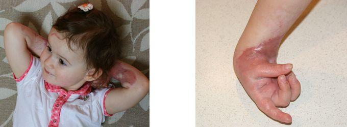 We can help the little girl who had the horrible accident :-( Poparzone rączki Zosi: Fundacja Wchodzę w To zbiera w Siepomaga.pl