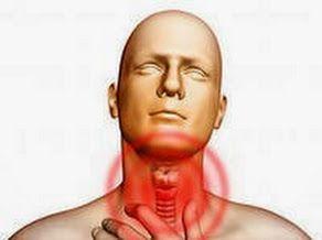 ангина лечение, болит горло, болит горло как быстро вылечить, болит горло как вылечить, болит горло чем лечить, йод, лечение боли в горле, м...