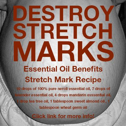 Get Rid Of Stretch Marks Http Essentialoilbenefits Org