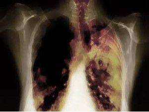 infeksi-paru-300x226