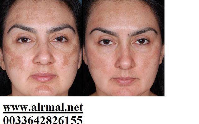 74 Best Images About Obagi Zo And Skin Medica Winning